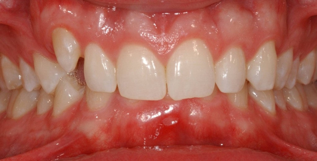 Notice the Upper Right Tooth that is Higher than the other teeth and that the lower teeth are completely covered.